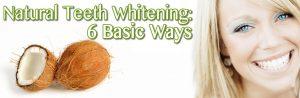 Natural Teeth Whitening in San Diego:  6 Basic Ways
