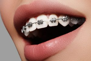 dental metal braces